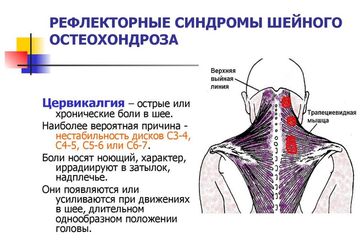 Что делать при позвоночном остеохондрозе и грыже