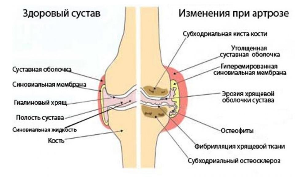 Как можно лечить повреждение коленного сустава